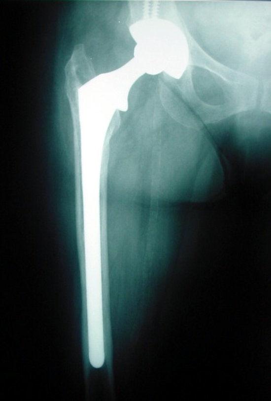 total kalça protezi